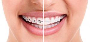 adult braces six month